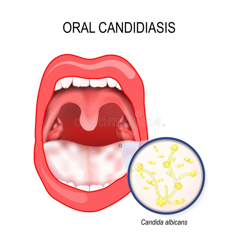 Προφορικό candidiasis Candida μόλυνσης ζύμης ofl albicans το στόμα απεικόνιση αποθεμάτων