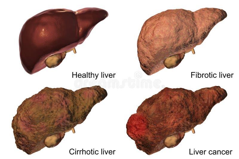 Πρόοδος ασθενειών ήπαρ στην ηπατίτιδα Β και την προερχόμενη από ιό μόλυνση Γ ελεύθερη απεικόνιση δικαιώματος
