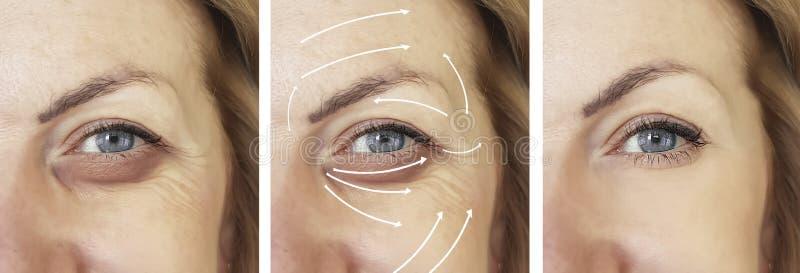 Πρόσωπο, γυναίκα, ρυτίδες, υπομονετική διόρθωση αντίθεσης διαφοράς επίδρασης πριν και μετά από τις διαδικασίες, βέλος στοκ εικόνα