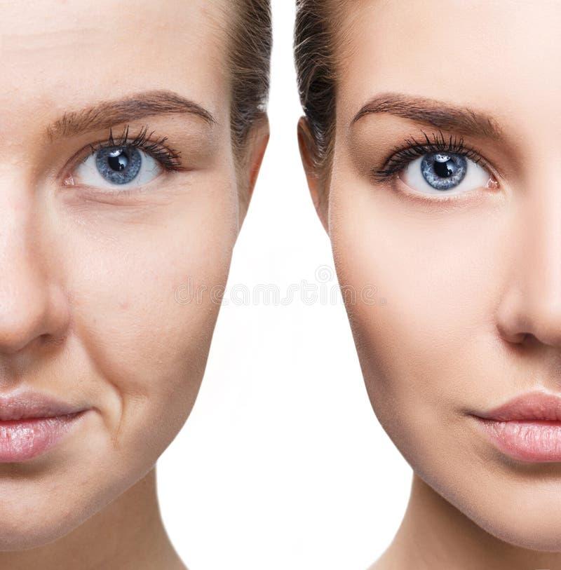 Πρόσωπο γυναικών ` s πριν και μετά από την αναζωογόνηση στοκ φωτογραφίες