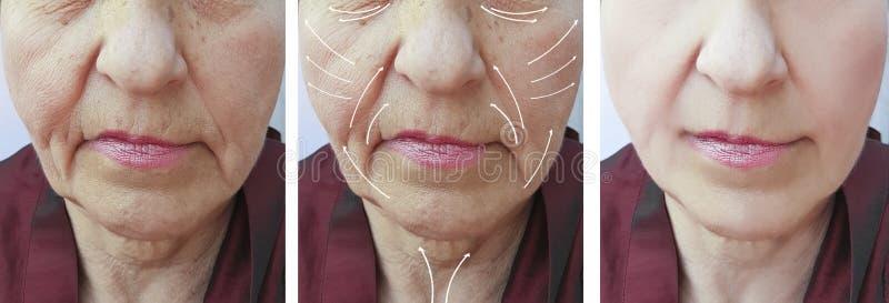 Πρόσωπο, ηλικιωμένη γυναίκα, ρυτίδες, πλαστική διόρθωση αντίθεσης υλικών πληρώσεως υπομονετική πριν και μετά από τις διαδικασίες, στοκ φωτογραφία