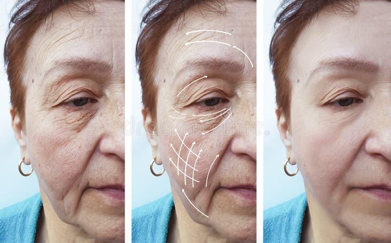 Πρόσωπο, ηλικιωμένη γυναίκα, ρυτίδες, cosmetology υλικών πληρώσεως υπομονετική διόρθωση αντίθεσης πριν και μετά από τις διαδικασί στοκ εικόνα