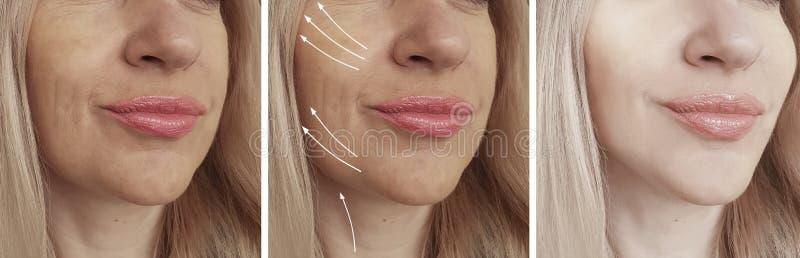 Πρόσωπο ρυτίδων γυναικών πριν και μετά από το κολάζ επεξεργασίας διορθώσεων στοκ εικόνα