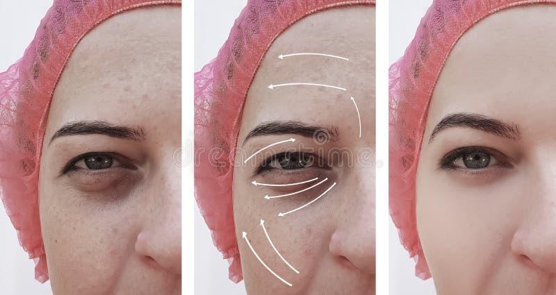 Πρόσωπο ρυτίδων γυναικών πριν και μετά από cosmetology διαφοράς τη διόρθωση θεραπείας, βέλος στοκ φωτογραφίες