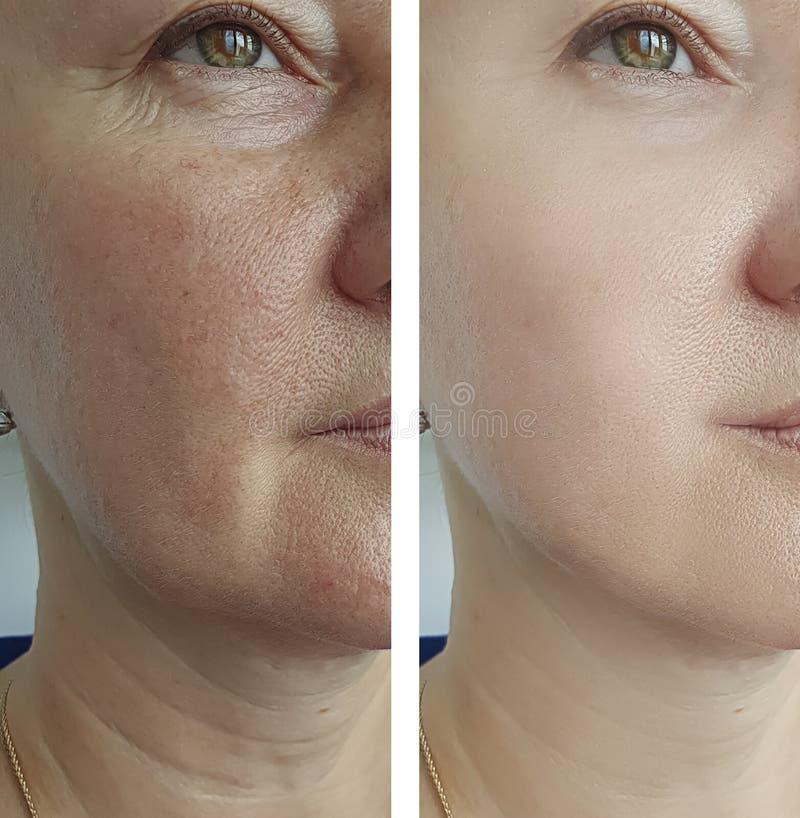 Πρόσωπο ρυτίδων γυναικών πριν μετά από τη διόρθωση επεξεργασίας στοκ φωτογραφίες