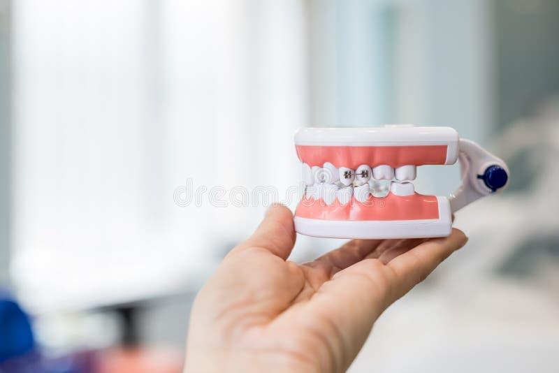 Πρότυπο του ανθρώπινου σαγονιού με τα στηρίγματα καλωδίων συνημμένα Οδοντικό και orthodontic εργαλείο παρουσίασης γραφείων, που α στοκ εικόνες