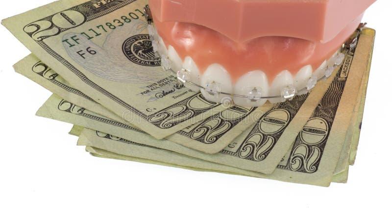 Πρότυπο των δοντιών με τα σαφή στηρίγματα και τα χρήματα Ceraminc στοκ φωτογραφίες