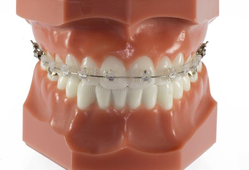 Πρότυπο των δοντιών με τα σαφή στηρίγματα Ceraminc στοκ εικόνες