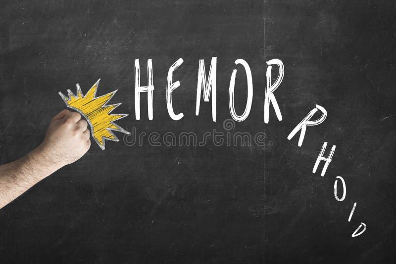 Πυγμή knoks η επιγραφή Hemorrhoid στον πίνακα κιμωλίας Σύμβολο της νίκης πέρα από Hemorrhoids στοκ φωτογραφίες με δικαίωμα ελεύθερης χρήσης