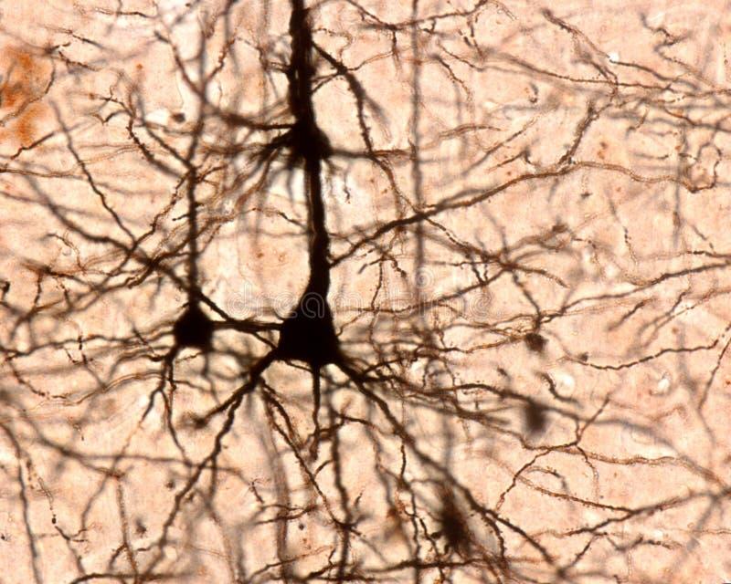 Πυραμιδικό κύτταρο Εγκεφαλικός φλοιός στοκ φωτογραφία με δικαίωμα ελεύθερης χρήσης