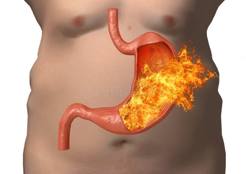 Πυρκαγιά στομαχιών υπερβολική οξύτητα, δυσπεψία, ασθένεια στομαχιών, γαστρικό έλκος, δριμύς κοιλιακός πόνος διανυσματική απεικόνιση
