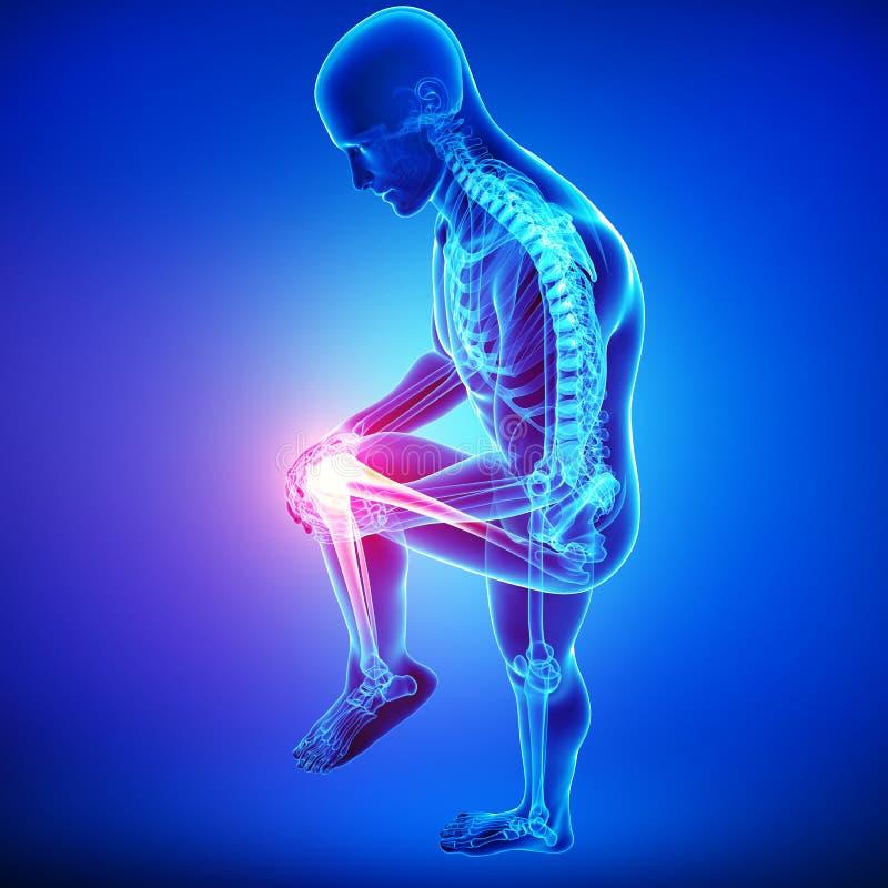 Πόνος γονάτων του αρσενικού στο μπλε απεικόνιση αποθεμάτων
