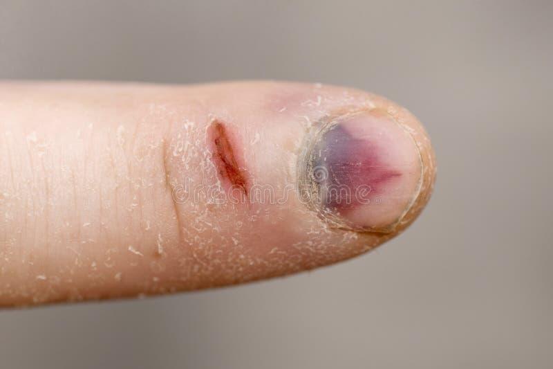 Πόνος και αιμάτωμα μετά από τον τραυματισμό Η έκβαση μετά από το χτύπημα Κλείστε αυξημένος ενός μωλωπισμένου καρφιού δάχτυλων στοκ φωτογραφίες με δικαίωμα ελεύθερης χρήσης