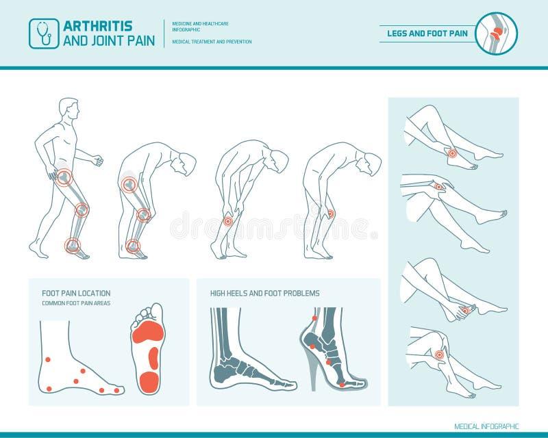 Πόνος και αρθρίτιδα ποδιών infographic ελεύθερη απεικόνιση δικαιώματος