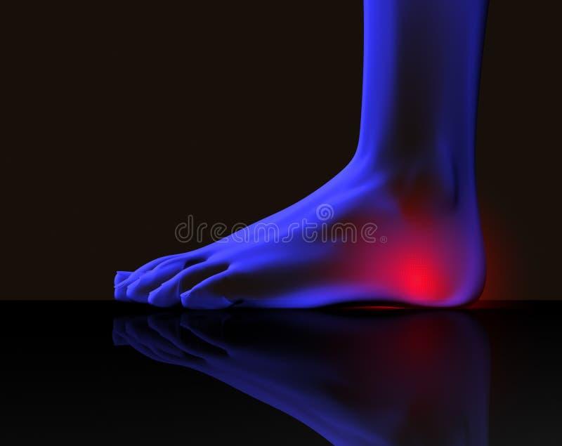 πόνος ποδιών ελεύθερη απεικόνιση δικαιώματος