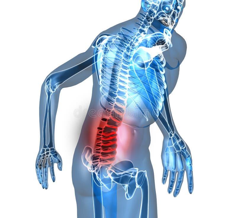πόνος στην πλάτη απεικόνιση αποθεμάτων