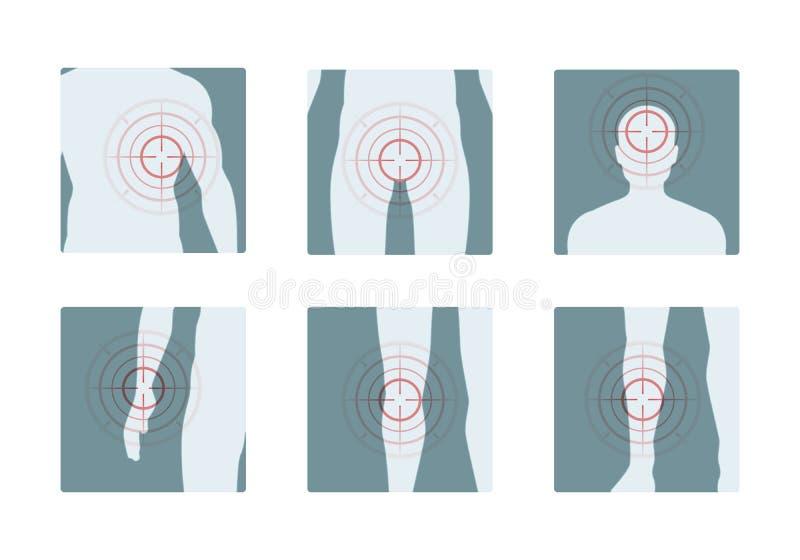 Πόνος σώματος Ομόκεντρα κόκκινα δαχτυλίδια των επίπονων ανθρώπινων εικόνων έννοιας μερών αναλγητικών διανυσματικών ελεύθερη απεικόνιση δικαιώματος