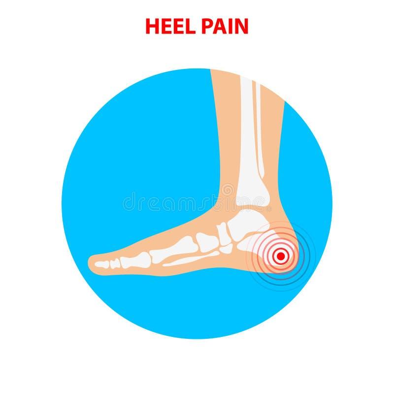 Πόνος τακουνιών Ανθρώπινο κοινό εικονίδιο αστραγάλων Υγειονομική περίθαλψη ποδιών Διάνυσμα άρρωστο ελεύθερη απεικόνιση δικαιώματος