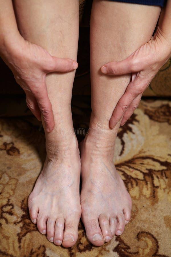 Πόδια της ανώτερης γυναίκας στοκ φωτογραφία με δικαίωμα ελεύθερης χρήσης