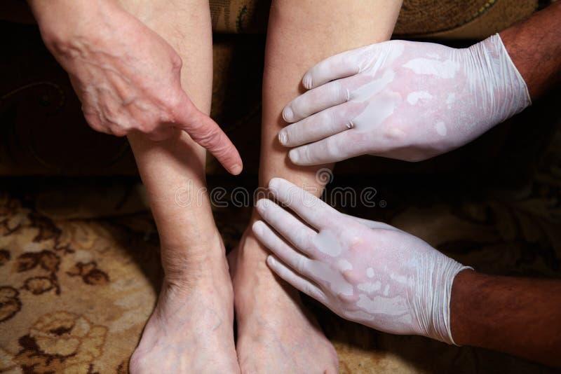 Πόδια της ανώτερης γυναίκας στοκ φωτογραφία
