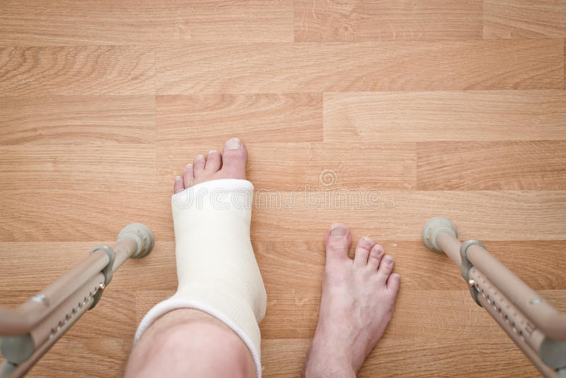 Πόδι στο ασβεστοκονίαμα και τα δεκανίκια στοκ φωτογραφία με δικαίωμα ελεύθερης χρήσης