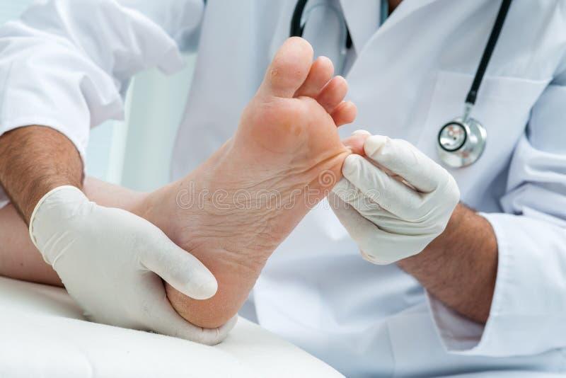 Πόδι pedis ή αθλητών Tinia στοκ εικόνα