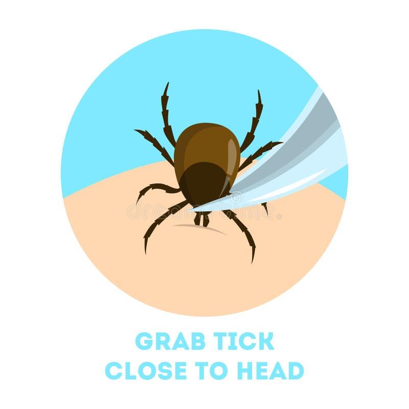 Πώς να απομακρύνει ένα έντομο ακαριών Καφετί παράσιτο, κίνδυνος εγκεφαλίτιδας διανυσματική απεικόνιση