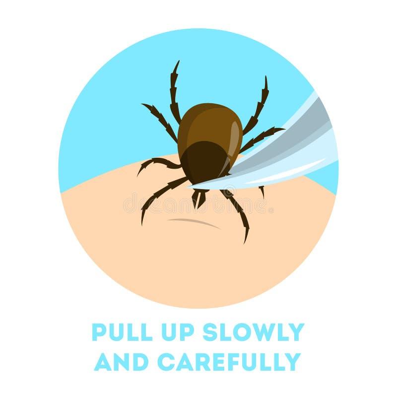Πώς να απομακρύνει ένα έντομο ακαριών Καφετί παράσιτο, κίνδυνος εγκεφαλίτιδας απεικόνιση αποθεμάτων