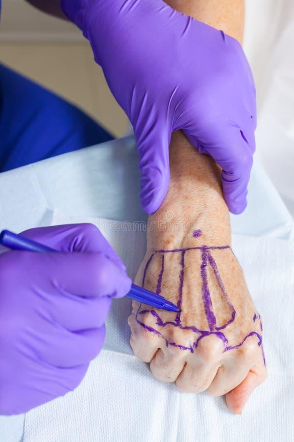 Πλαστικός γιατρός χειρούργων που χαρακτηρίζει το χέρι της ανώτερης γυναίκας για τη χειρουργική επέμβαση στοκ φωτογραφία με δικαίωμα ελεύθερης χρήσης