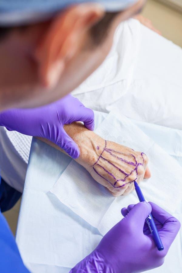 Πλαστικός γιατρός χειρούργων που χαρακτηρίζει το χέρι της ανώτερης γυναίκας για τη χειρουργική επέμβαση στοκ φωτογραφίες με δικαίωμα ελεύθερης χρήσης