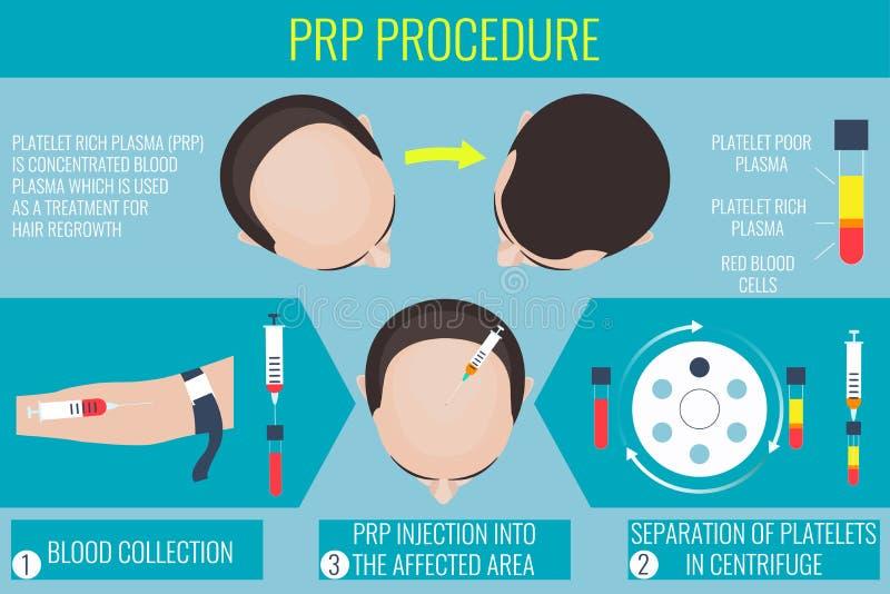 Πλούσια διαδικασία πλάσματος αιμοπεταλίων για ένα άτομο απεικόνιση αποθεμάτων