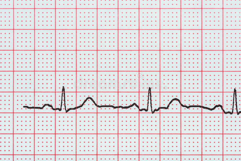 Ρυθμός καρδιών κόλπων σε χαρτί αρχείων ηλεκτροκαρδιογραφημάτων που παρουσιάζει κανονική καρδιά στοκ φωτογραφία με δικαίωμα ελεύθερης χρήσης