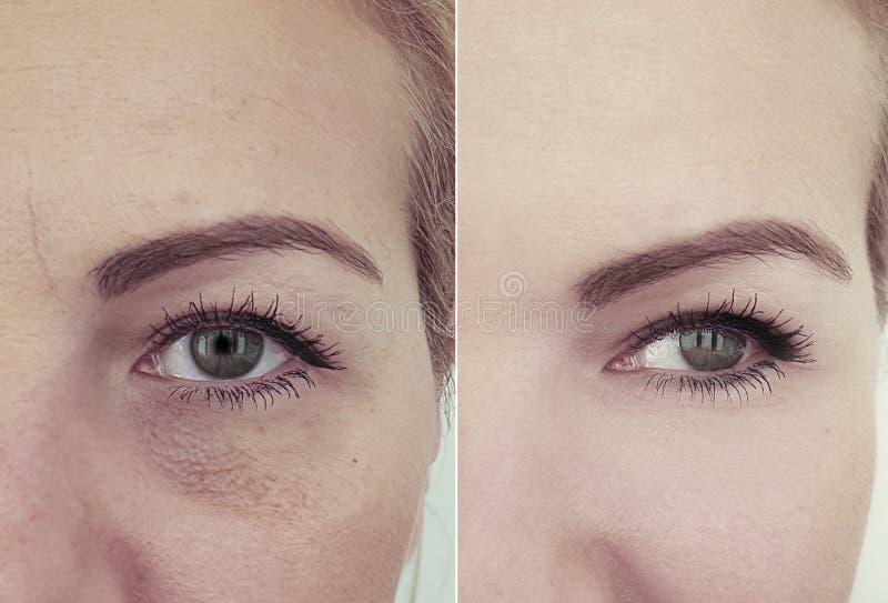 Ρυτίδες προσώπου γυναικών μετά από την ένταση αναζωογόνησης διαφοράς beautician επίδρασης στοκ εικόνα με δικαίωμα ελεύθερης χρήσης