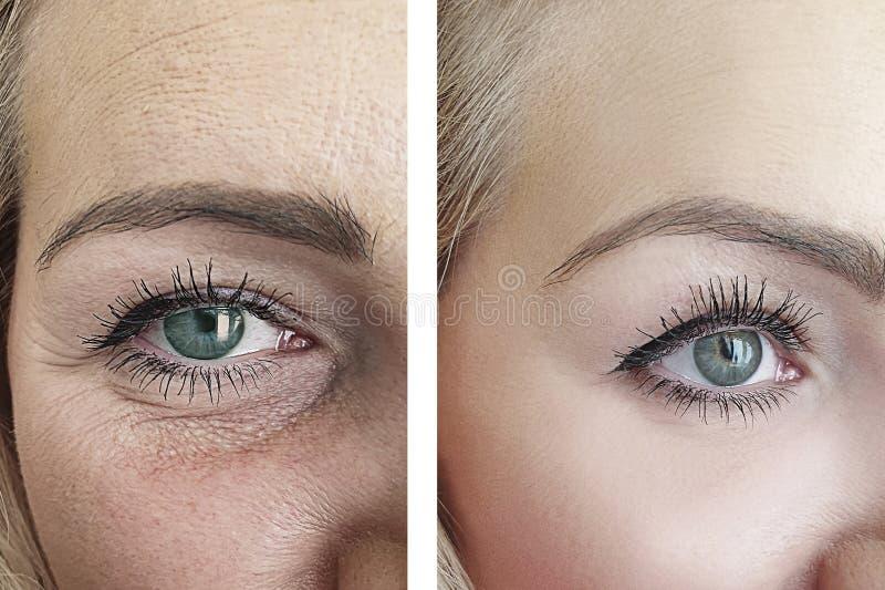 Ρυτίδες προσώπου γυναικών μετά από την υπομονετική ένταση αναζωογόνησης διαφοράς beautician επίδρασης στοκ εικόνες με δικαίωμα ελεύθερης χρήσης
