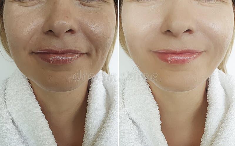 Ρυτίδες προσώπου γυναικών πριν μετά από το beautician επεξεργασίας στοκ εικόνες