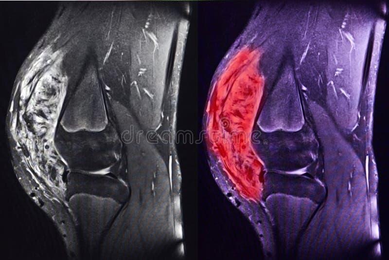 Σάρκωμα του γονάτου, MRI στοκ εικόνα με δικαίωμα ελεύθερης χρήσης