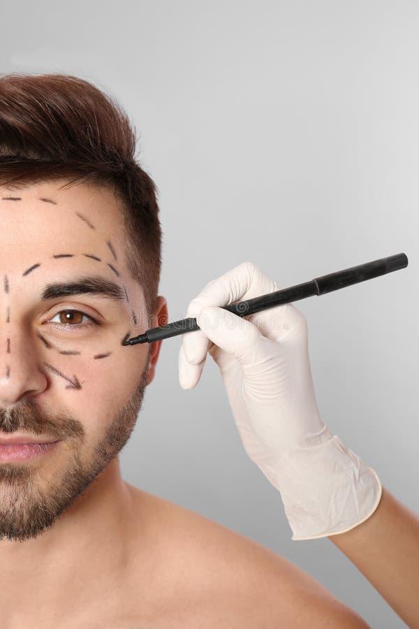 Σημάδια σχεδίων γιατρών στο ανθρώπινο πρόσωπο για τη λειτουργία αισθητικής χειρουργικής στο γκρίζο κλίμα στοκ εικόνες