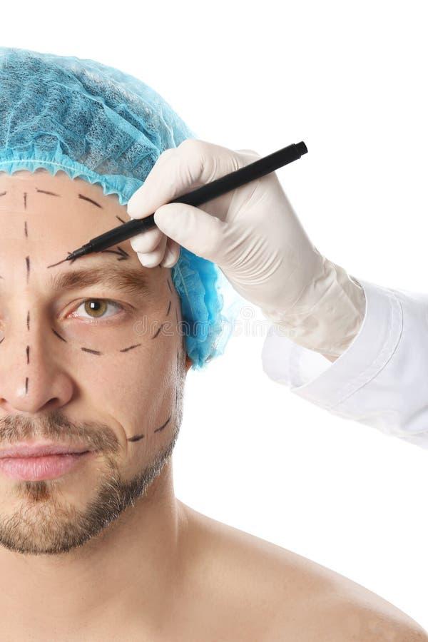 Σημάδια σχεδίων γιατρών στο ανθρώπινο πρόσωπο για τη λειτουργία αισθητικής χειρουργικής στο άσπρο κλίμα στοκ φωτογραφία με δικαίωμα ελεύθερης χρήσης