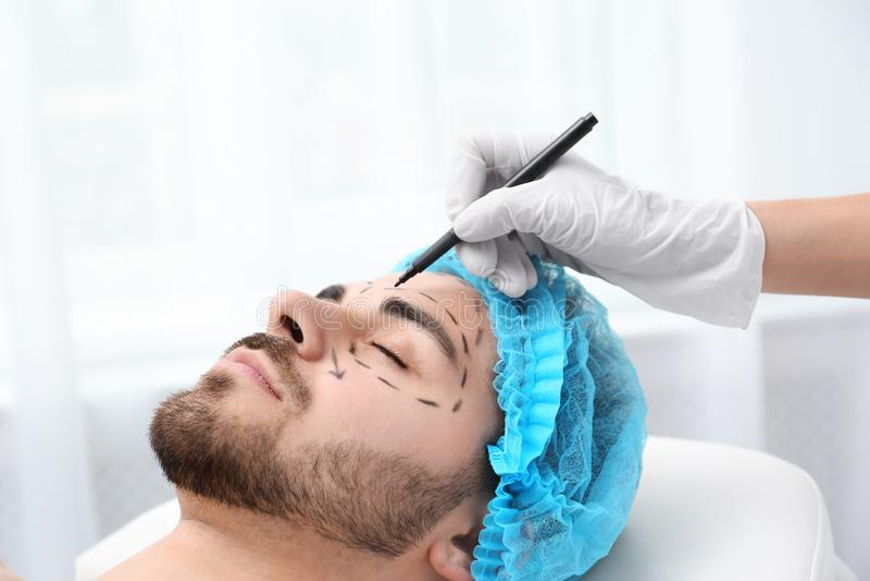 Σημάδια σχεδίων γιατρών στο ανθρώπινο πρόσωπο για τη λειτουργία αισθητικής χειρουργικής στοκ φωτογραφίες με δικαίωμα ελεύθερης χρήσης