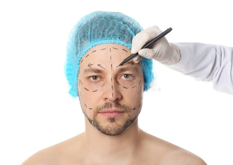 Σημάδια σχεδίων γιατρών στο ανθρώπινο πρόσωπο για τη λειτουργία αισθητικής χειρουργικής στοκ εικόνες