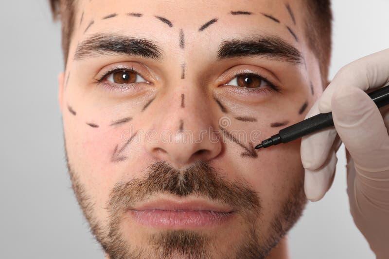 Σημάδια σχεδίων γιατρών στο ανθρώπινο πρόσωπο για τη λειτουργία αισθητικής χειρουργικής στο γκρίζο κλίμα, στοκ φωτογραφία