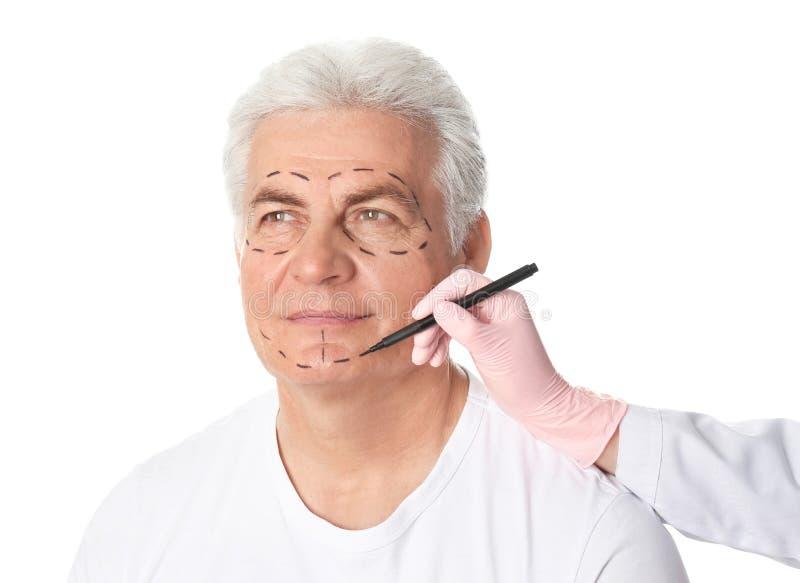 Σημάδια σχεδίων γιατρών στο ώριμο ανθρώπινο πρόσωπο για τη λειτουργία αισθητικής χειρουργικής στοκ εικόνες με δικαίωμα ελεύθερης χρήσης