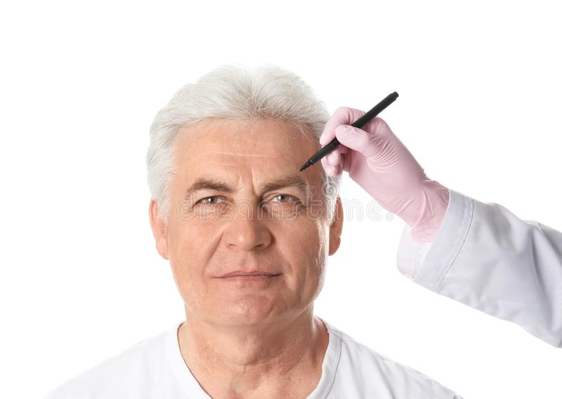 Σημάδια σχεδίων γιατρών στο ώριμο ανθρώπινο πρόσωπο για τη λειτουργία αισθητικής χειρουργικής στοκ φωτογραφία