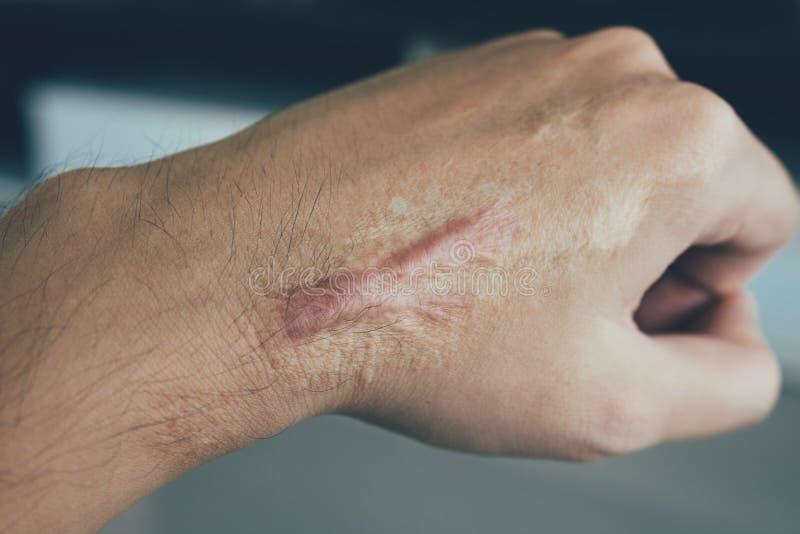 Σημάδι στο ανθρώπινο keloid δερμάτων σε διαθεσιμότητα στοκ φωτογραφία