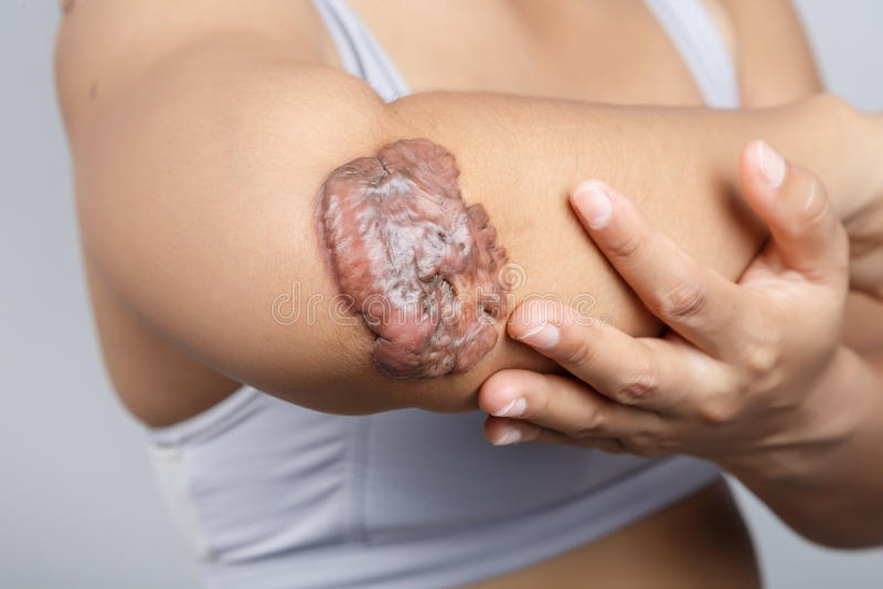 Σημάδι στο ανθρώπινο δέρμα στοκ εικόνες με δικαίωμα ελεύθερης χρήσης