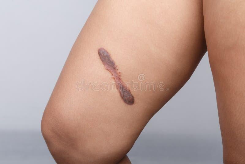 Σημάδι στο ανθρώπινο δέρμα στοκ φωτογραφία με δικαίωμα ελεύθερης χρήσης