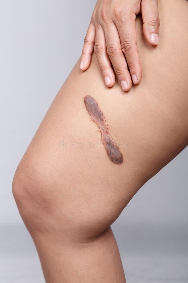 Σημάδι στο ανθρώπινο δέρμα στοκ φωτογραφίες με δικαίωμα ελεύθερης χρήσης