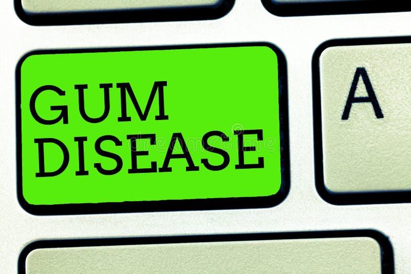Σημείωση γραψίματος που παρουσιάζει ασθένεια γόμμας Ανάφλεξη επίδειξης επιχειρησιακών φωτογραφιών της μαλακής ουλίτιδας Periodont στοκ εικόνες με δικαίωμα ελεύθερης χρήσης
