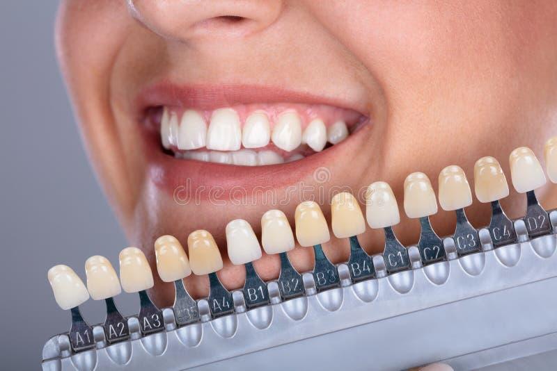 Σκιά ταιριάσματος γυναικών των δοντιών μοσχευμάτων στοκ εικόνες