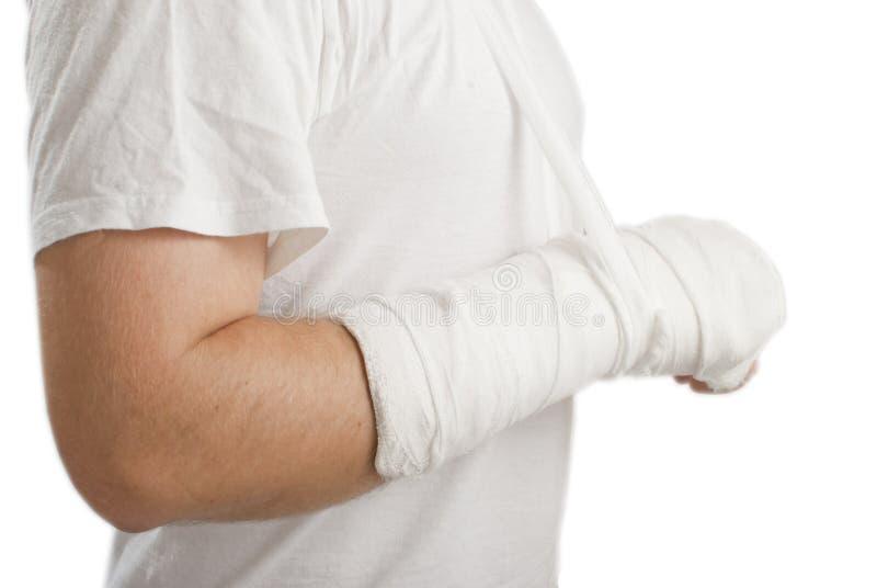 σπασμένο άτομο χεριών στοκ εικόνες με δικαίωμα ελεύθερης χρήσης